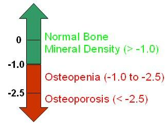 Normal Bone Mineral Density. Osteoporosis, Osteopenia