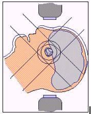 pituitary tumor radiotherapy