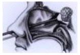 pituitary-11
