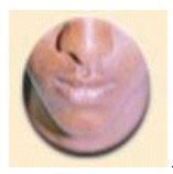 pituitary-8
