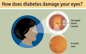 diabetes damage your eye