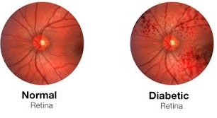 normal diabetic retina