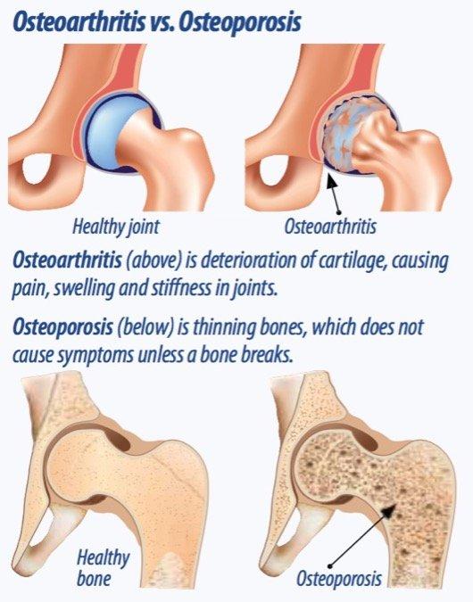 Osteoarthritis vs. Osteoporosis. Image credit arthritis-advisor.com