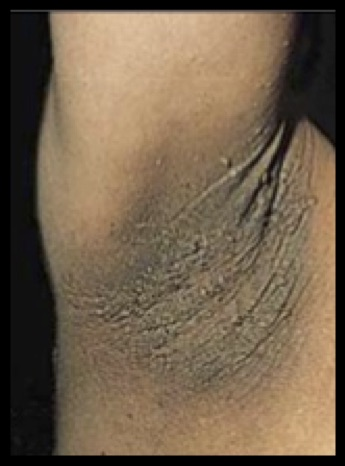 Acanthosis Nigricans in Axilla