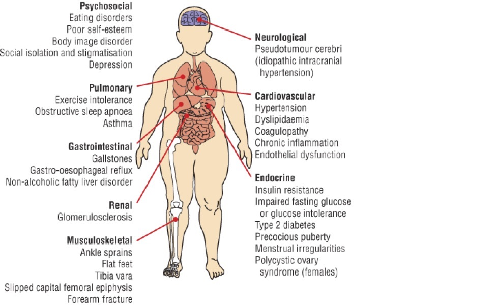 health consequences of regional obesity
