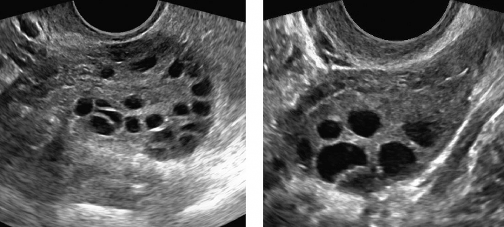 Ultrasound showing Polycystic Ovaries