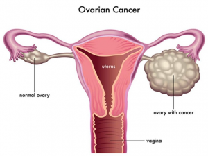 Diagram showing Normal and Polycystic ovary